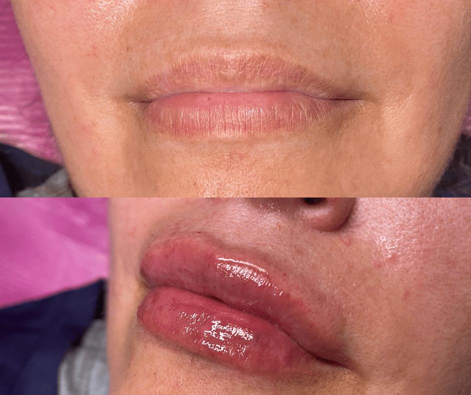 Needleless Lip Fillers